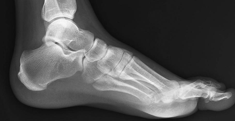 how to fix broken toes